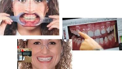 Digital Smile Designing
